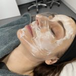 skin needling anti ageing bucks
