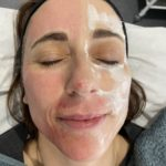 skin needling acne scarring treatment
