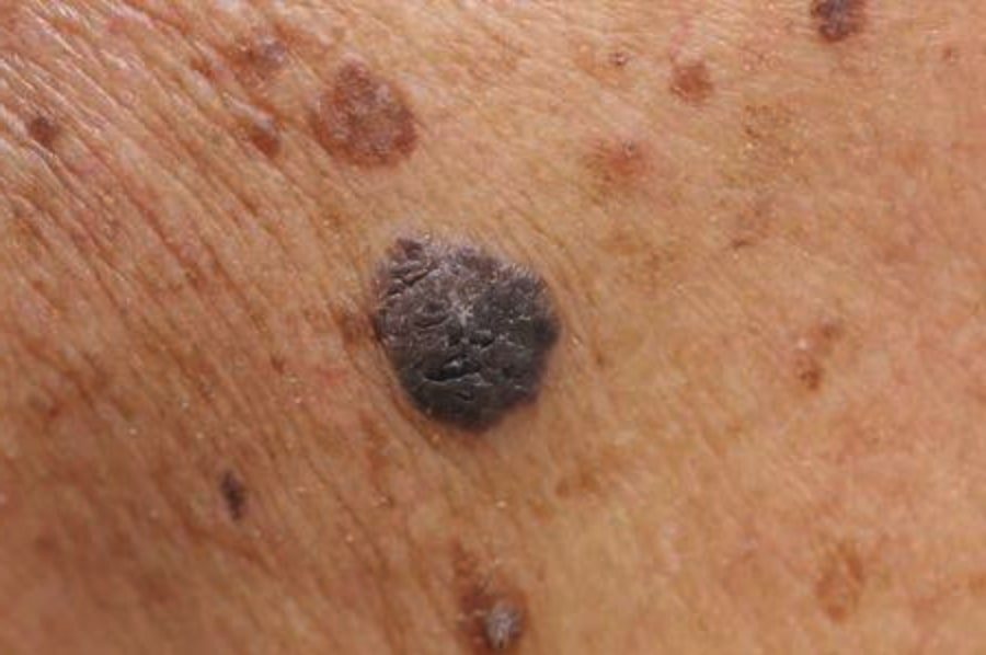 mole removal skin cancer removal aylesbury buckinghamshire